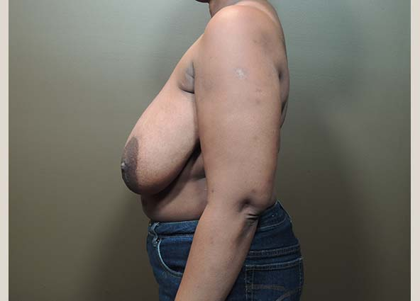 breast reduction before