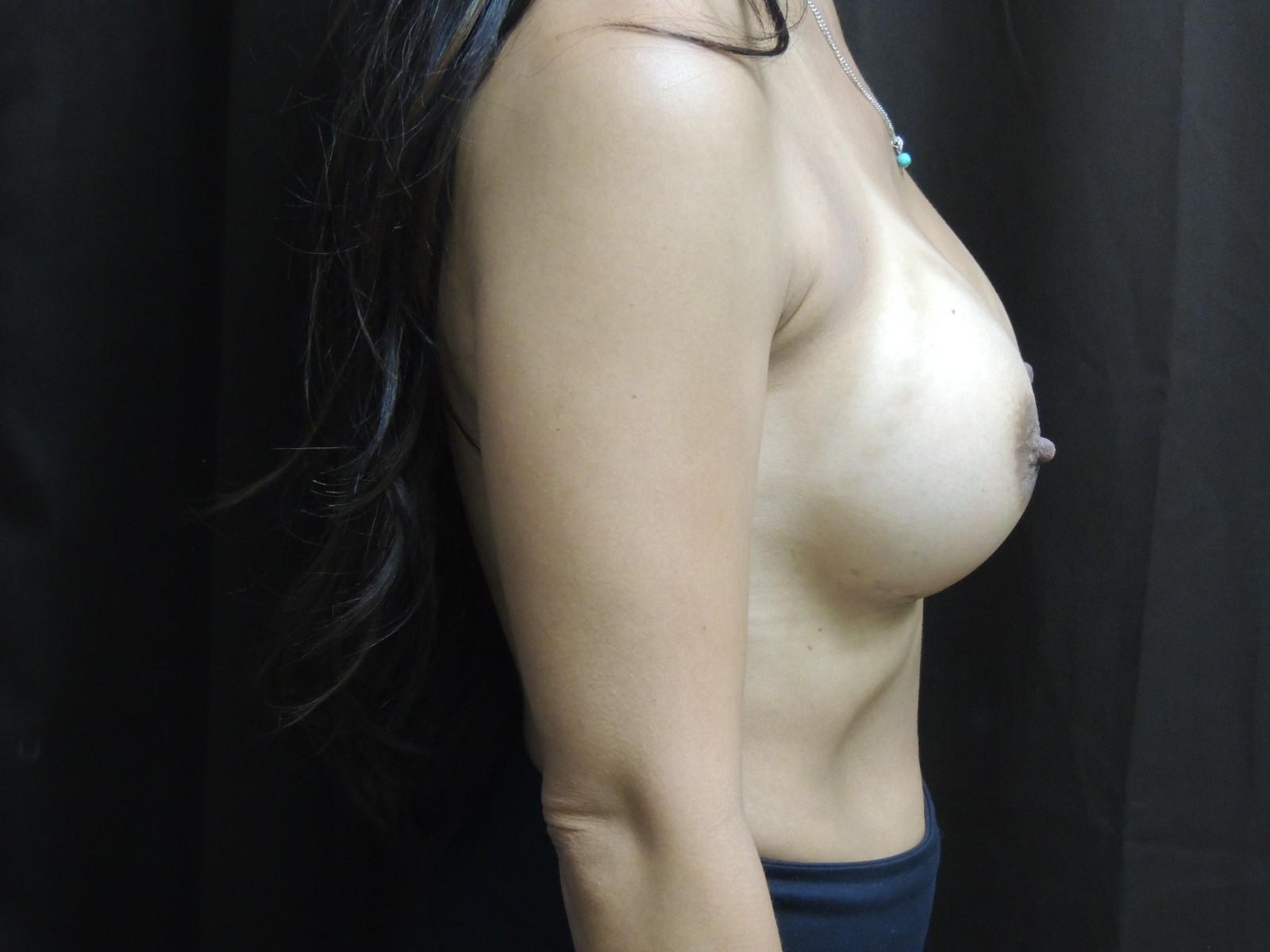 breast augmentation after surgery