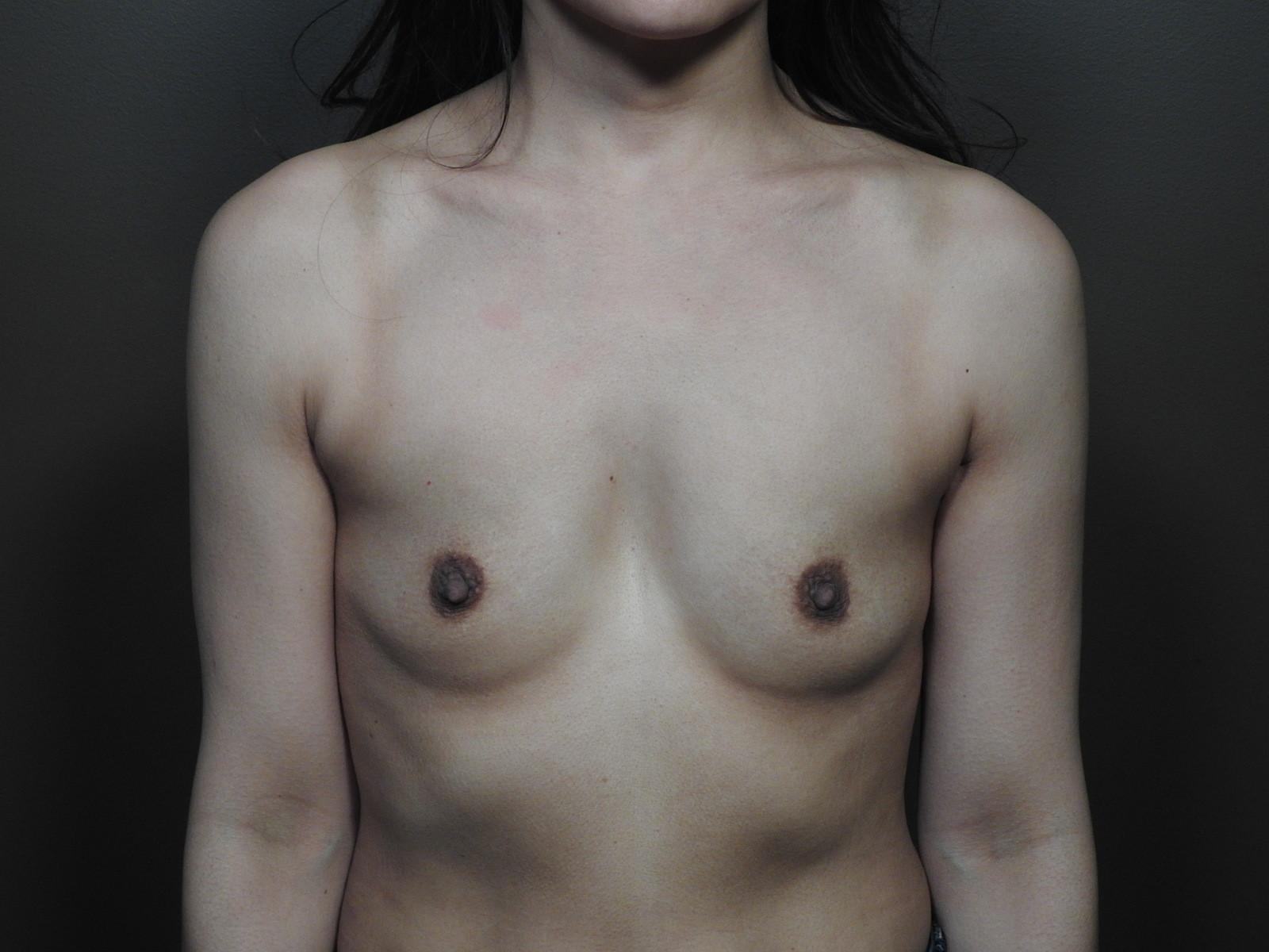 breast augmentation before surgery