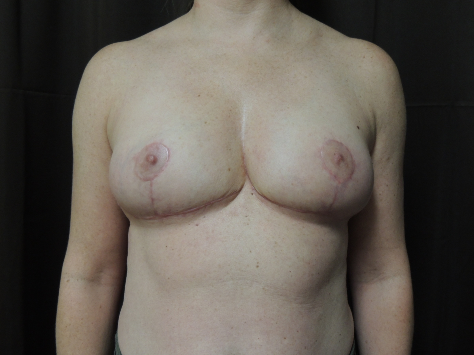 breast reduction after surgery