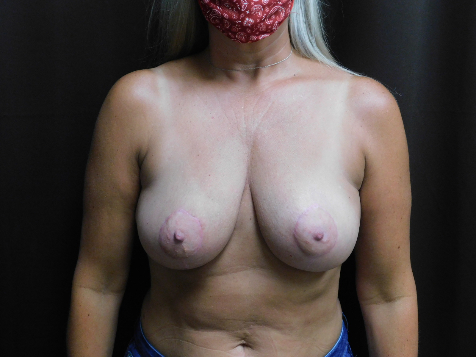 breast lift after surgery